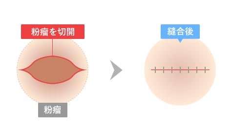 粉瘤を切開→縫合後