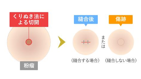 くり抜き法による切開→縫合後または傷跡