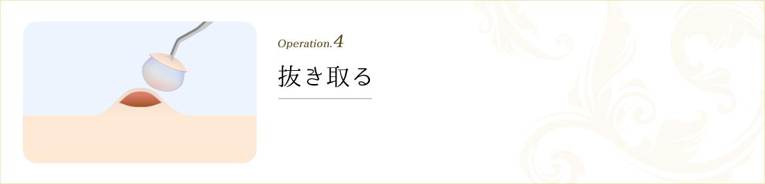operation.4 抜き取る