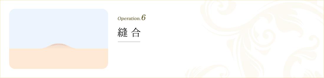 operation.6 縫合